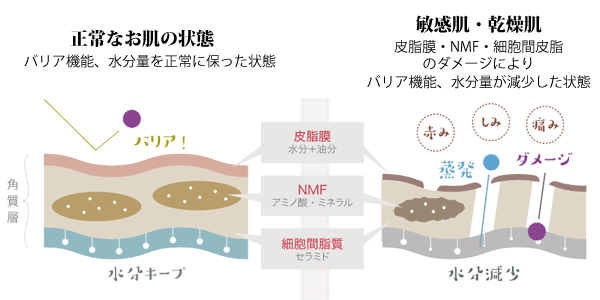 細胞間脂質・NMF・皮脂膜